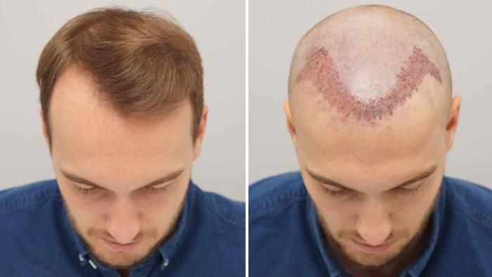 transplantasi rambut botak