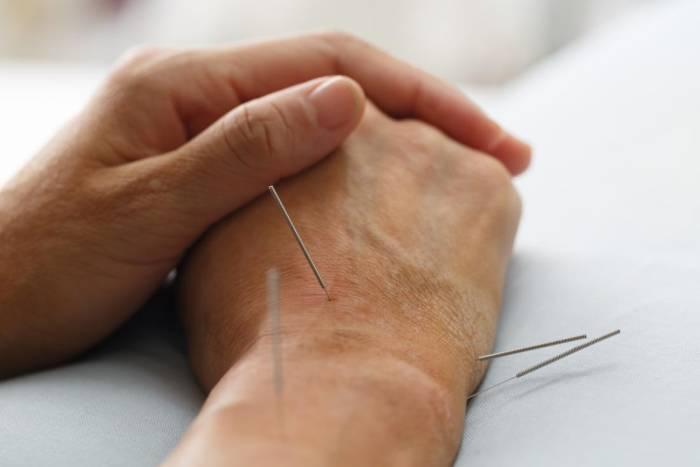 pengobatan alternatif akupuntur