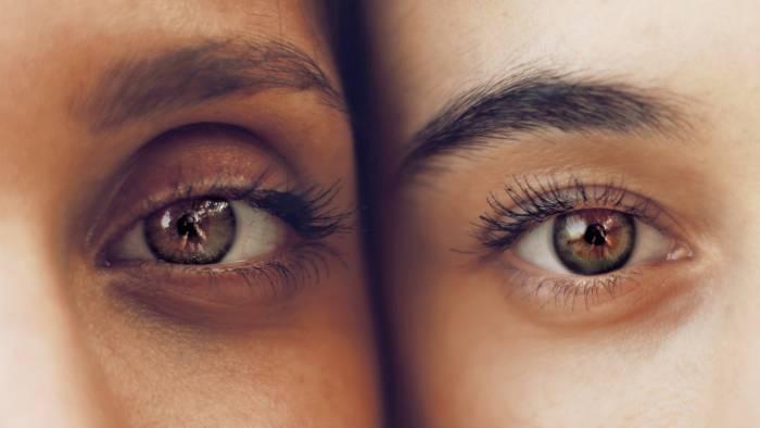 menggosok mata kuat penyebab mata panda