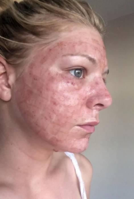 iritasi efek samping perawatan facial wajah