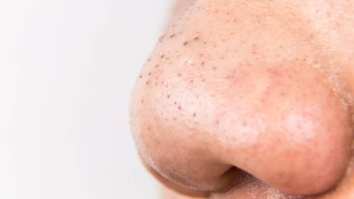 Selain Jerawat, Ini 6 Gangguan yang Sering Muncul di Wajah