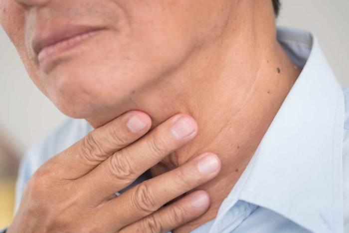 gejala kanker pita suara atau kanker laring