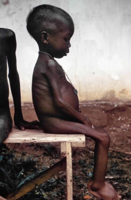 jenis gizi buruk marasmik kwashiorkor pada anak