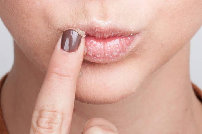 Solusi Atasi Bibir Gelap Supaya Cerah Kembali | Indozone.id