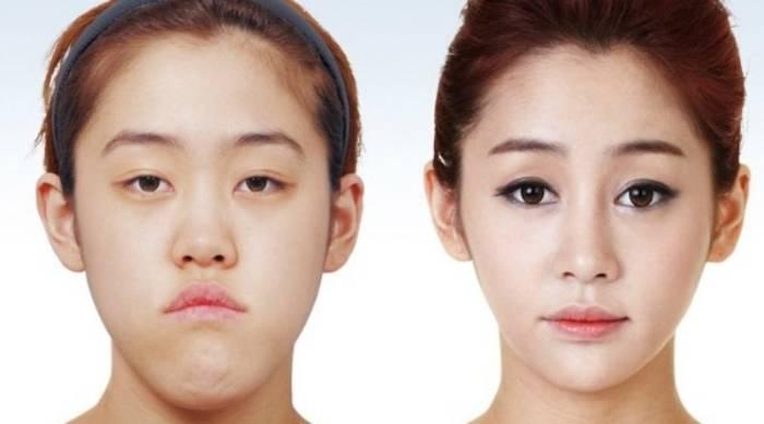 perbedaan operasi plastik di tahiland dan korea selatan