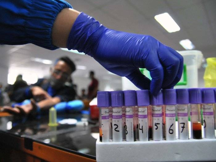 hasil rapid test virus corona covid-19 di Indonesia