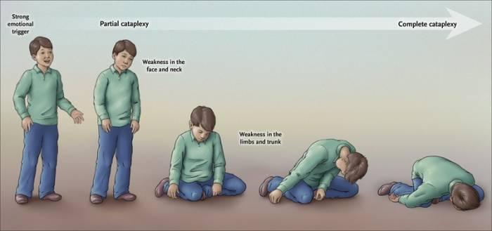 Ilustrasi narcolepsy