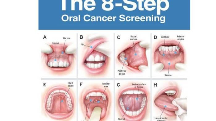 Kanker Mulut: Tanda Awal, Gejala, Penyebab dan Pengobatan ...
