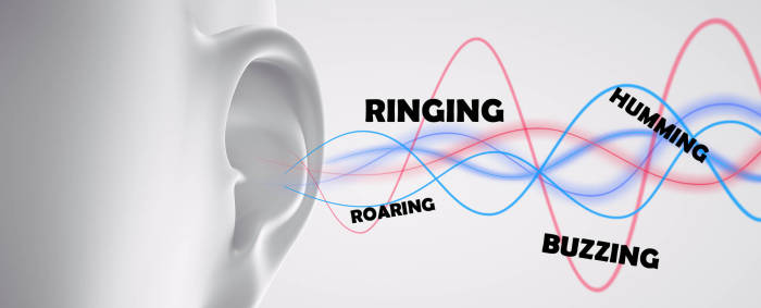 Ilustrasi gejala tinnitus
