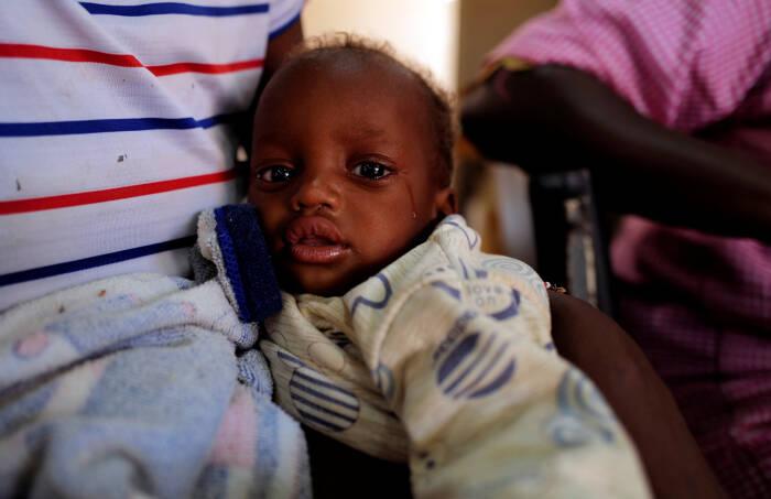 Amadou Boureima, seorang anak berusia dua belas bulan yang menderita malnutrisi